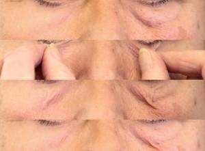 eye-baggy-skin-2