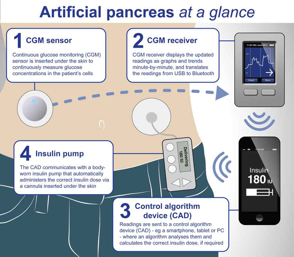 artificial-pancreas-2