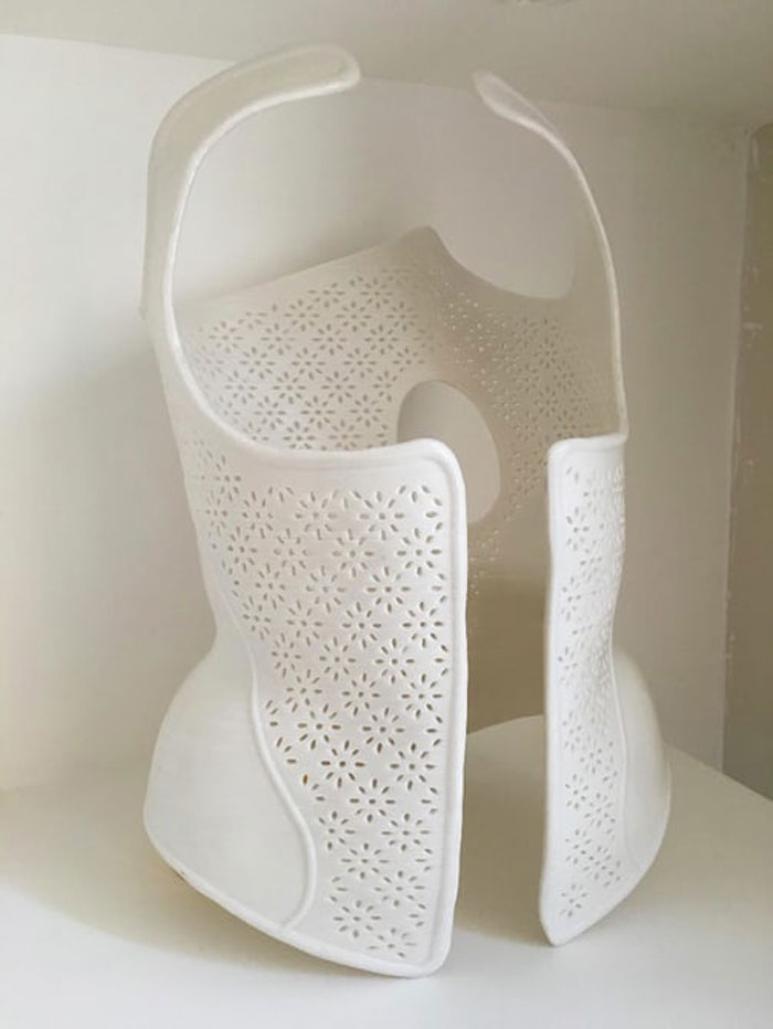 3d-printed-scoliosis-corset-2