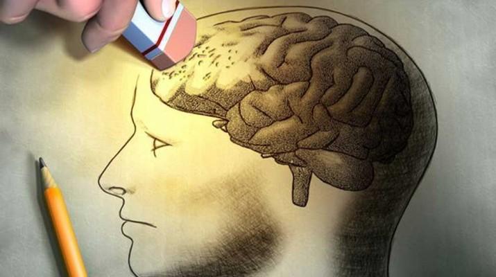 brain-memory-forget-1