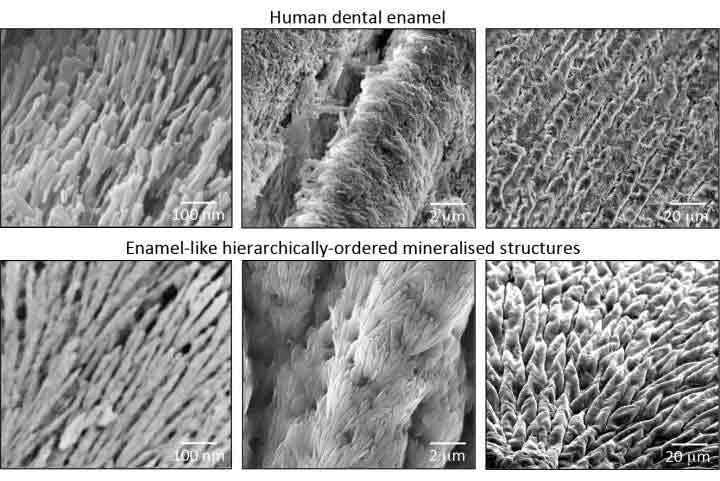 regenerate-enamel-2
