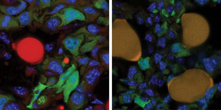 turn--breast-cancer-cells-into-fat-2